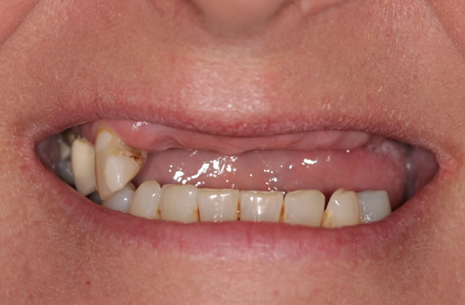 dental implants before and after belfast