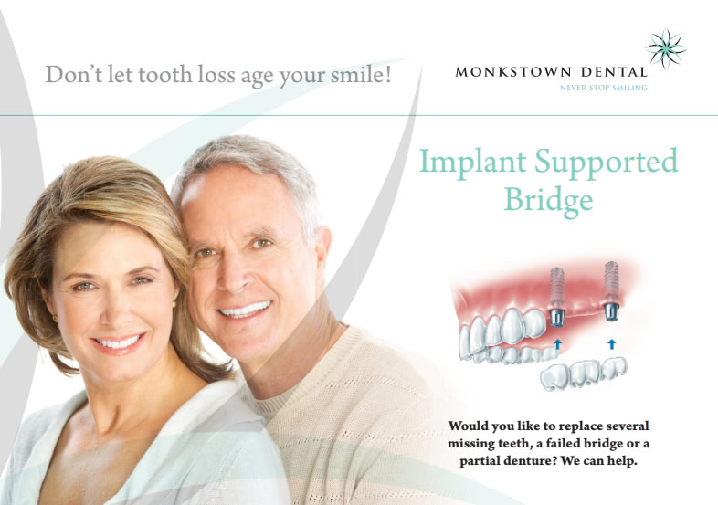Monkstown brochure implants
