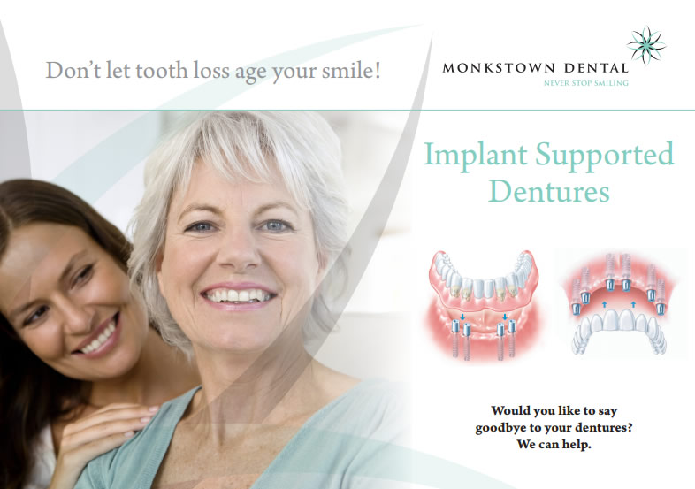 Monkstown dental implant supported dentures