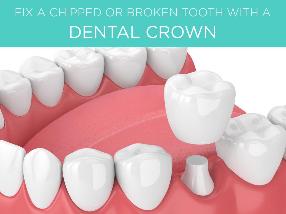repair broken tooth under crown