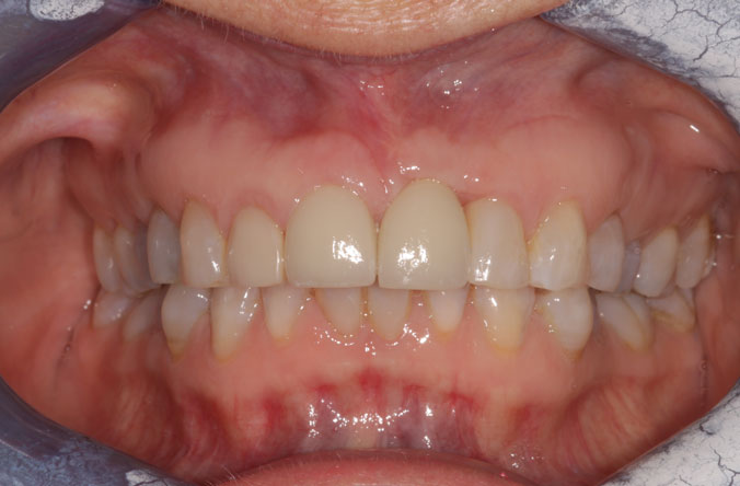 gum graft treatment in belfast