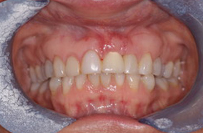 Monkstown dental gum graft before and after belfast