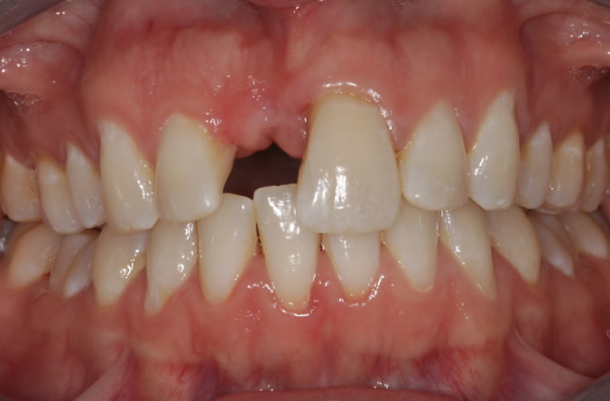 Monkstown dental implants before and after belfast