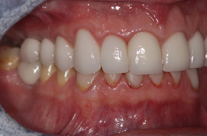 tooth wear treatment in belfast