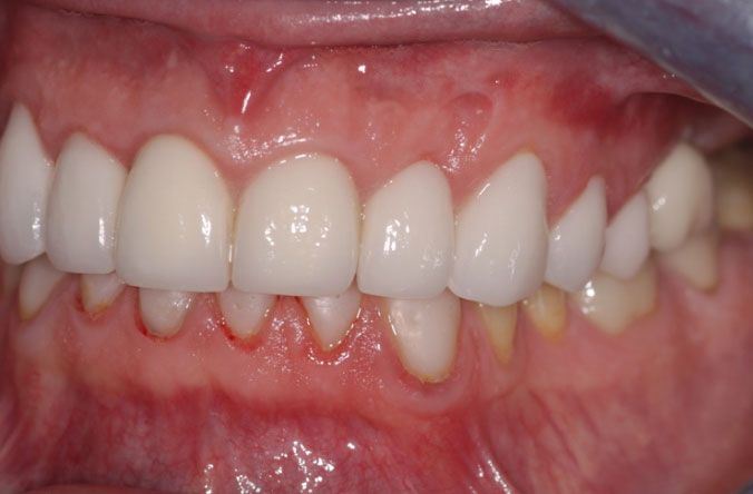 tooth wear treatment in belfast monkstown