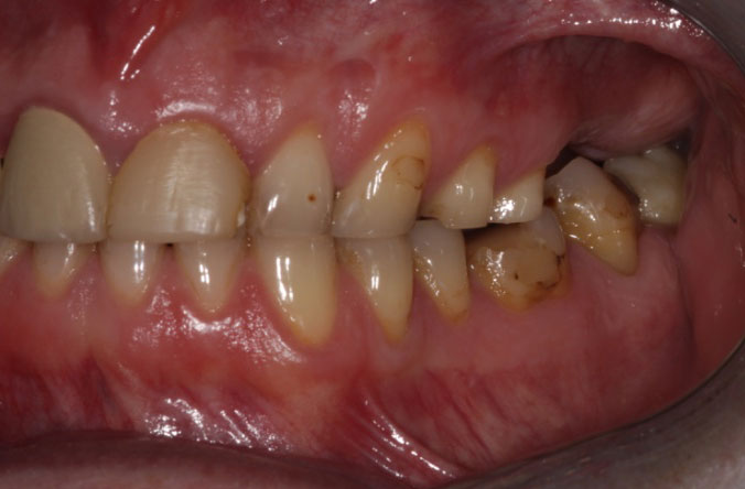 Monkstown dental tooth wear before and after belfast